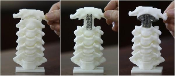 3d nyomtatott csontpótlás fémből