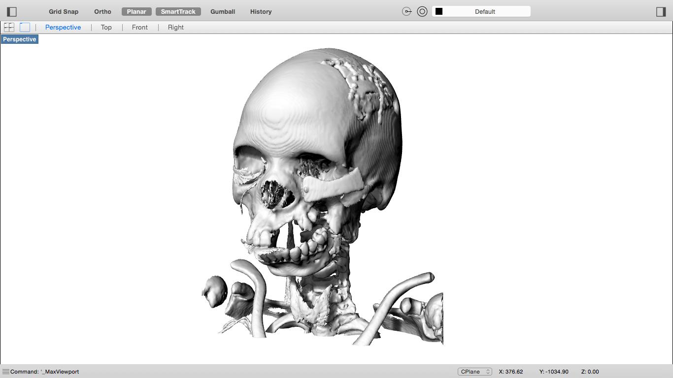 Hogyan készíthető 3D nyomtatott modell CT és MR felvételek alapján?