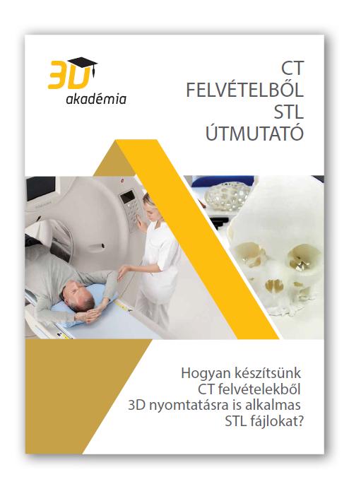 egészségügyi 3D nyomtatás útmutató CT felvételek 3D nyomtatásához