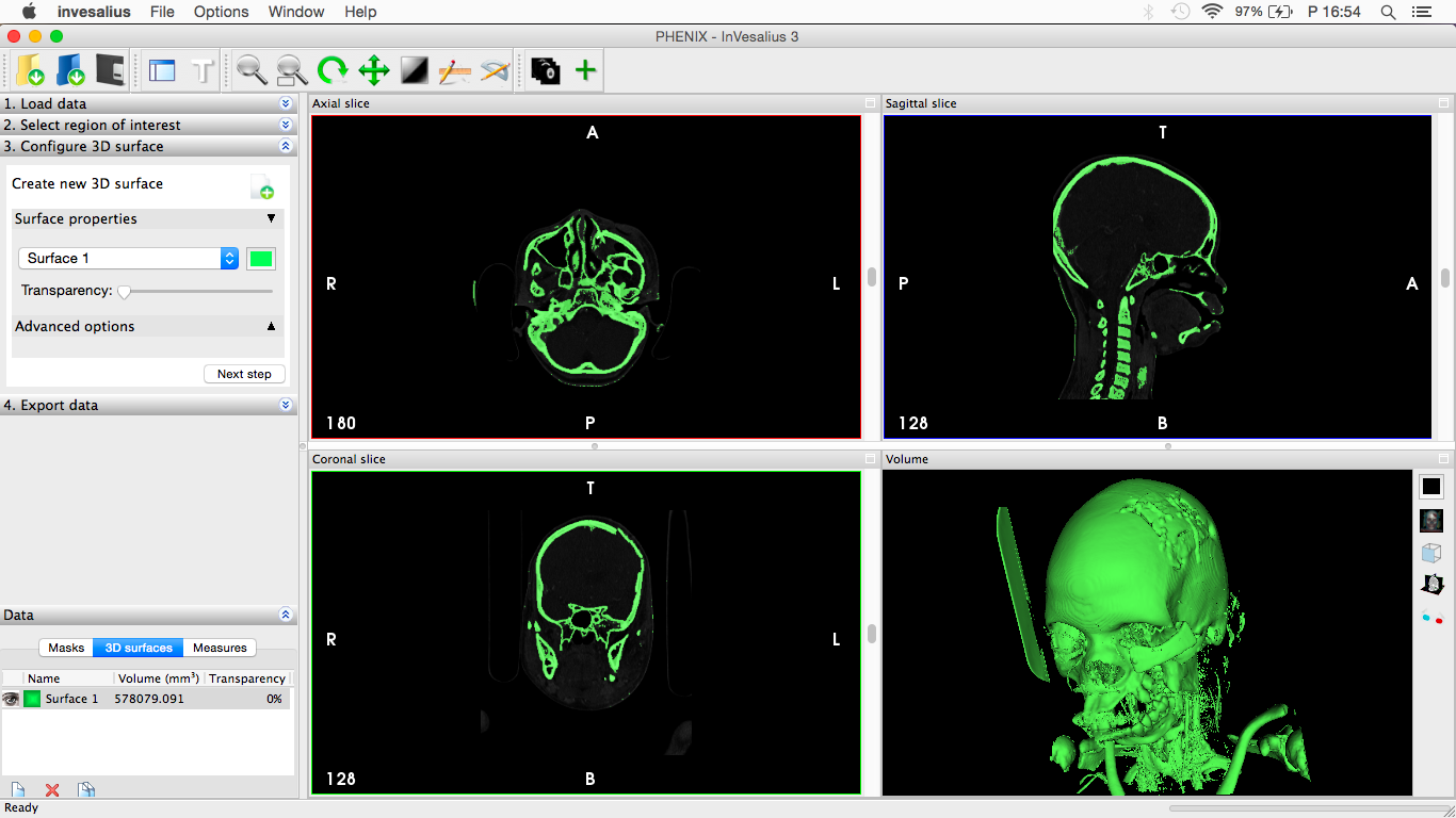 egészségügyi 3D modell nyomtatásra veló felkészítés előtt