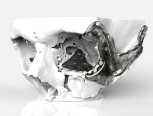 3D nyomtatott titán csontpótlás